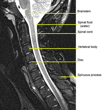MRI of the Cervical Spine
